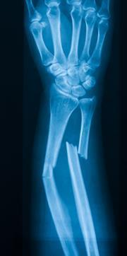 An xray of a broken bone