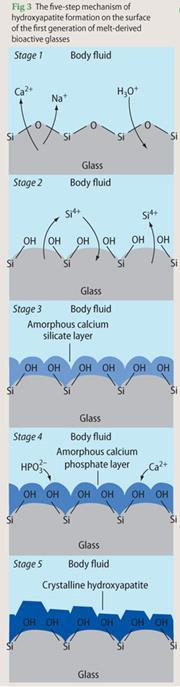 Figure 3 - the five-step mechanism of hydroxyapatite formation on the surface of the first generation of melt-derived bioactive glass