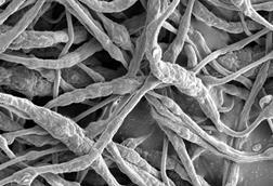 SEM image of the TPP at PVDF HFP microfibers