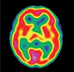 Healthy brain scan using technetium-99m. Here the brain activity is colour-coded, from red (most active) through yellow to green and blue (least active).