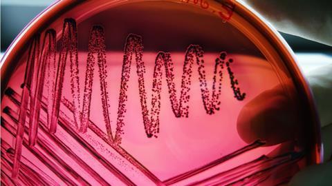 E. coli on emb agar