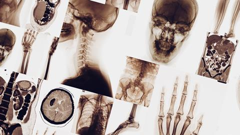 X-ray images