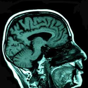 Figure 2 - MRI scan of the human brain